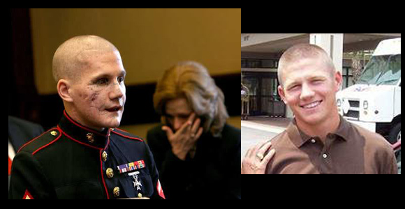 Lance-Cpl.-Kyle-Carpenter